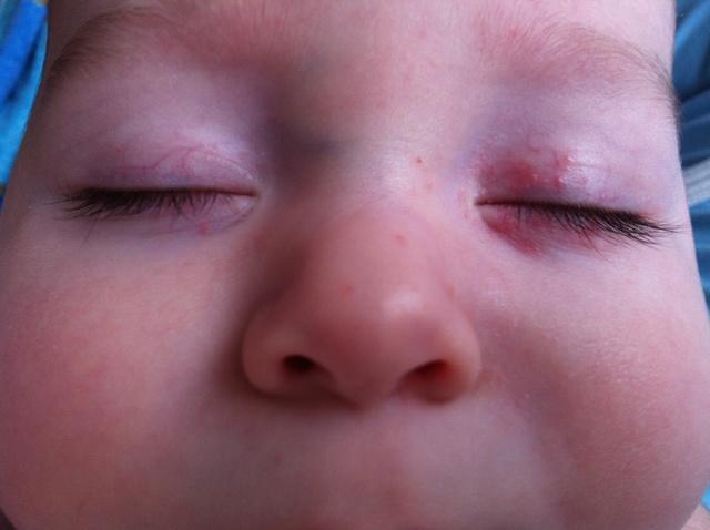 Грудничок сыпь под глазами