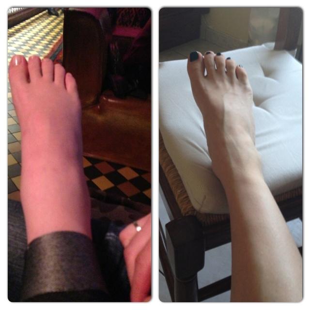 Как снять отёки ног у беременной 82
