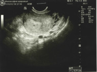 Фото узи на 2 неделе беременности