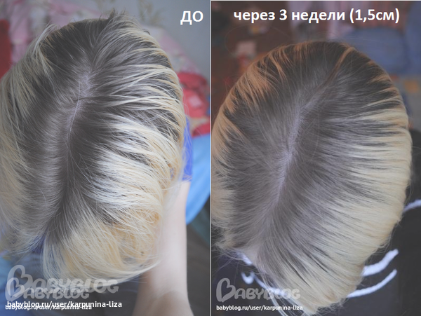 Аевит для маски волос