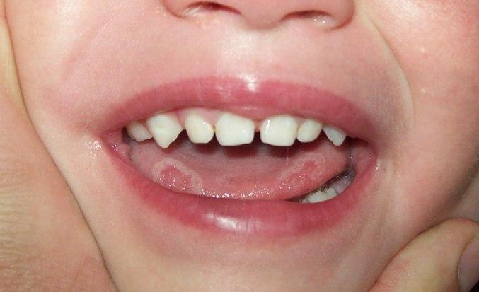 Белый налёт на языке у взрослых: причины, лечение, фото