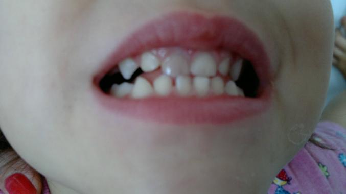 Если шатается передний зуб Адентору