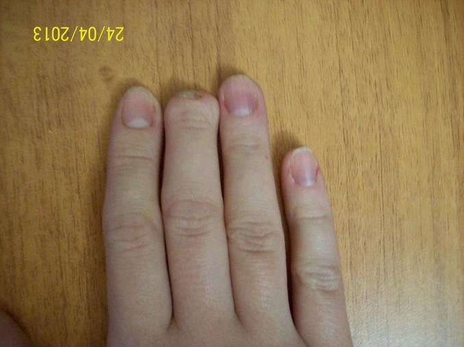 Палец руки без ногтя