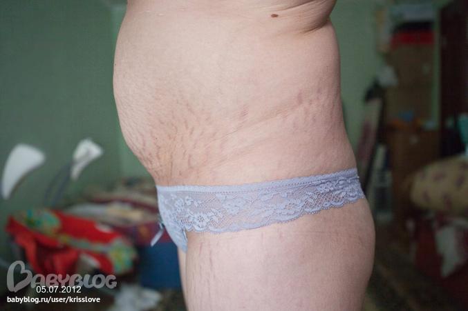 ксеникал на сколько можно похудеть за месяц