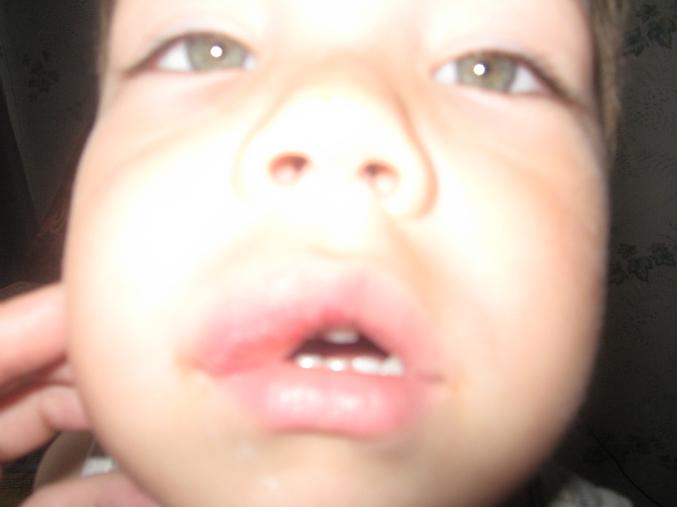У ребенка опухает верхняя губа уже год