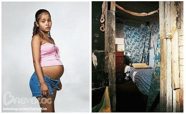 Беременность в 11 лет