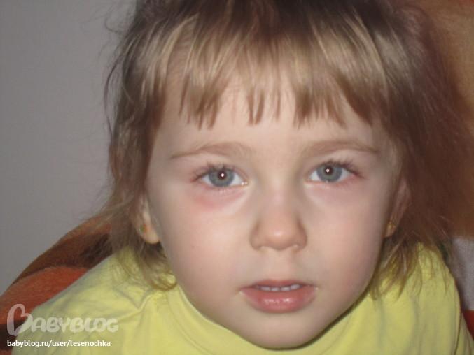 Фото дерматита на глазах у детей