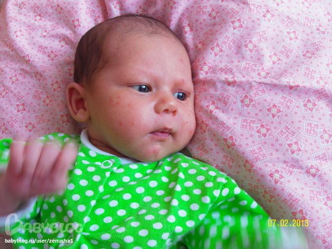 Что такое цветение кожи у новорожденных фото