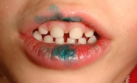 Почему ребенок кусает себе губы 28