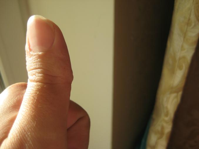 утолщения в суставах пальцев рук