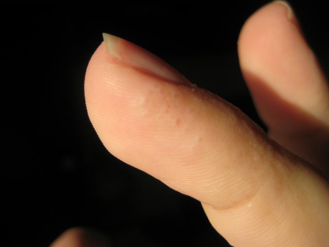 Дырка под кожей на пальце
