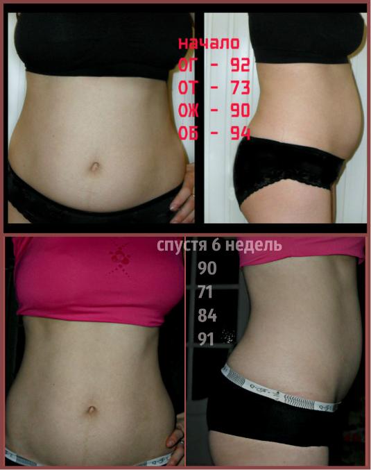 Как похудеть без растяжек и морщин
