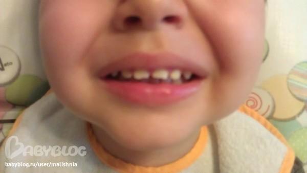 Ребенок упал ударился зубов