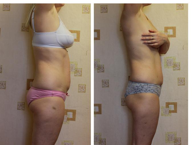Похудеть с 60 до 45 dietafitnesspitanie