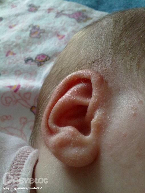 Прыщики у новорожденного на ушах