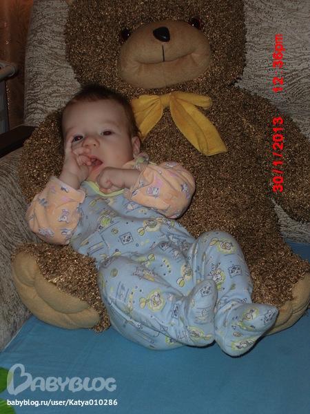 фото отека гортани у ребенка