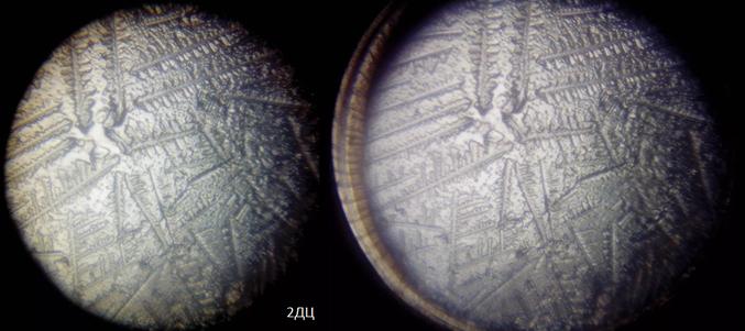 Как выглядит слюна беременной под микроскопом 95